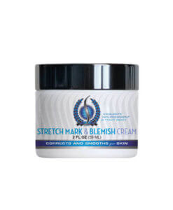 Shinkafa Body: Stretch Mark & Blemish Cream