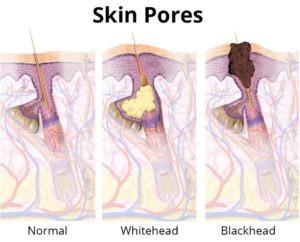 Skin Pores Diagram